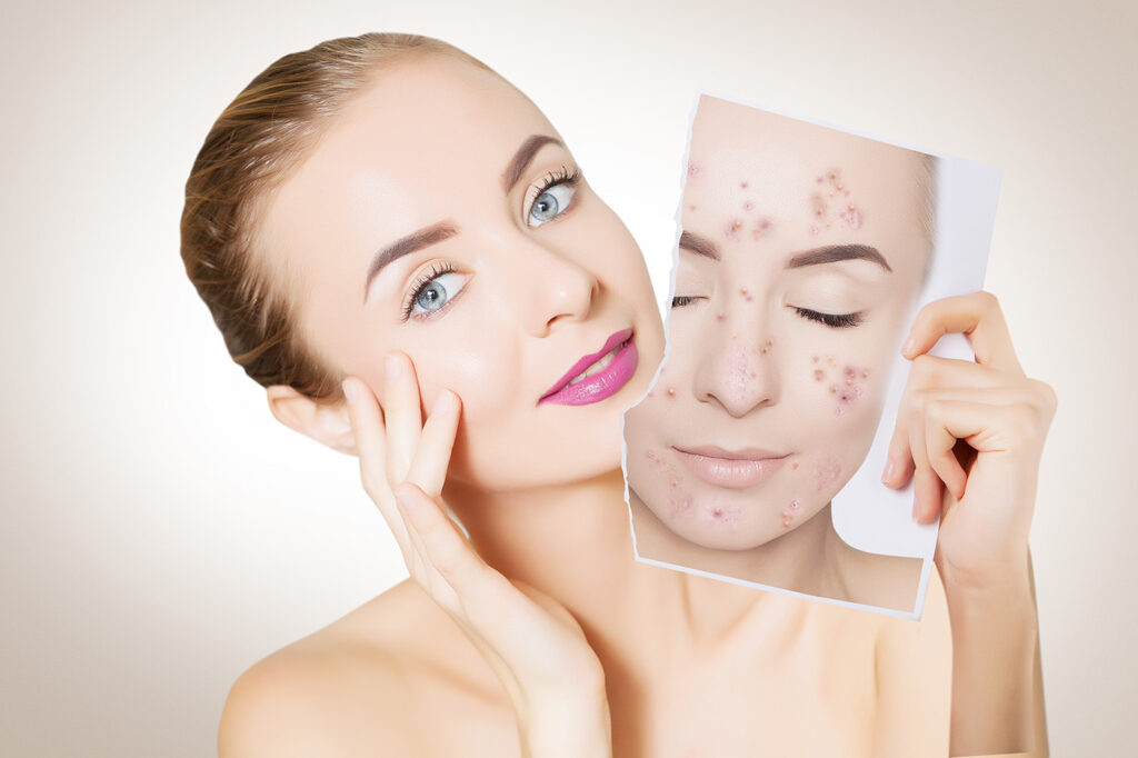 ingrijirea tenului acneic