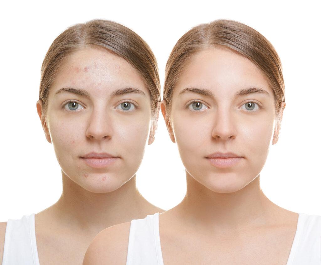 Rutina de ingrijire a tenului acneic